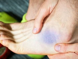 Featured | Bruise near ankle, common runners contusion | Ankle Sprain Treatment For First, Second, And Third Degree Sprains