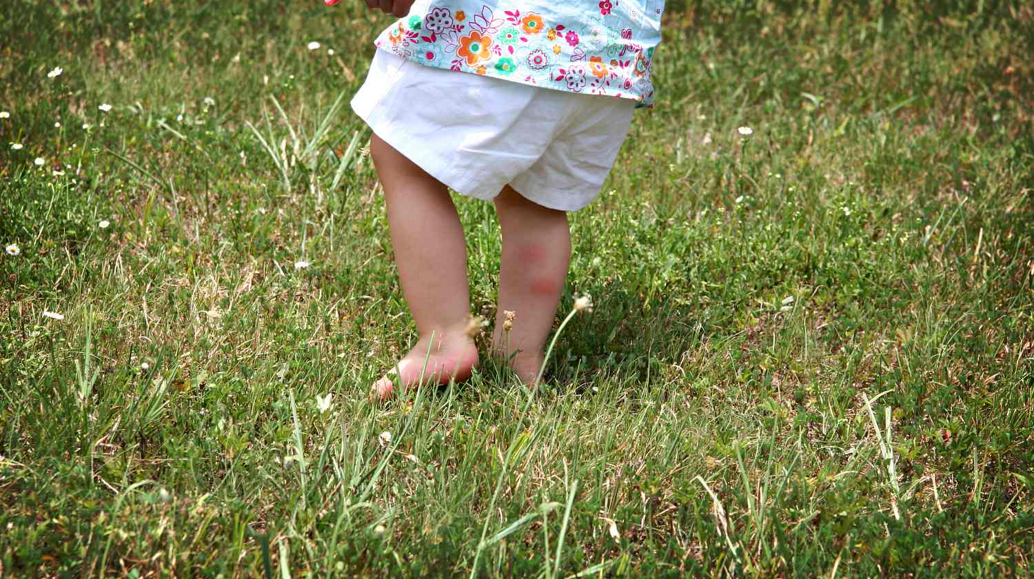 Bug bites on back of baby girl's leg   Home Remedies For Chigger Bites   Featured